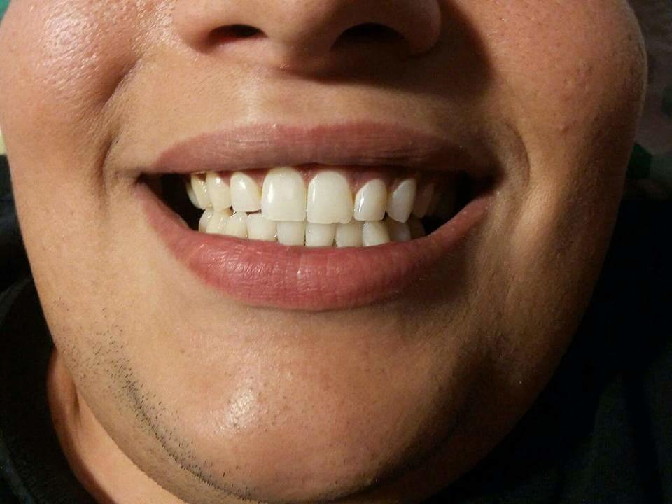 X&J SMILES Mobile Teeth Whitening image 4