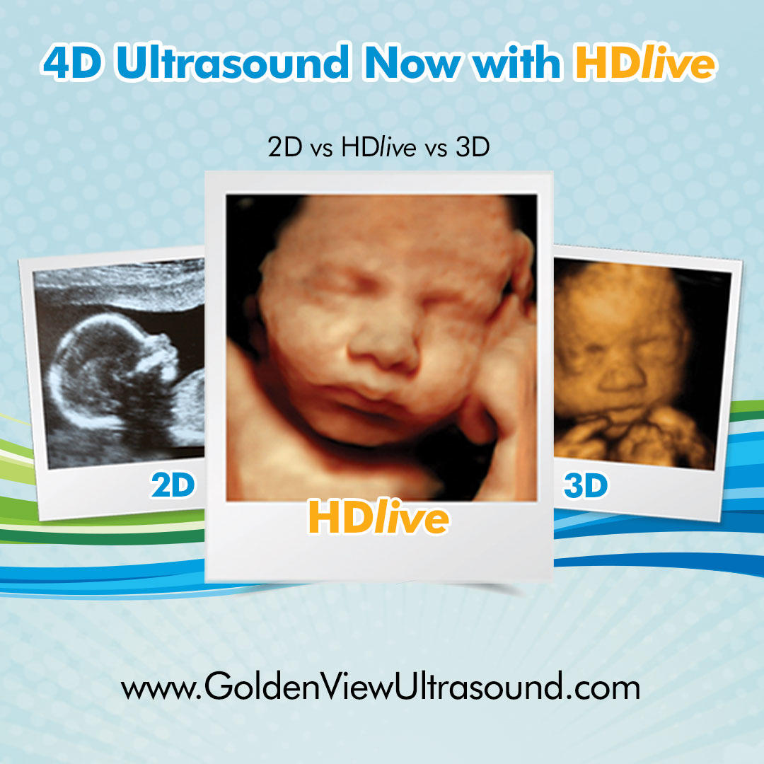 Goldenview Ultrasound 3d/4d/HDlive San Antonio