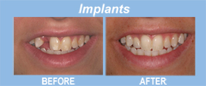 Dr. Warren Libman DDS MSD PS image 6