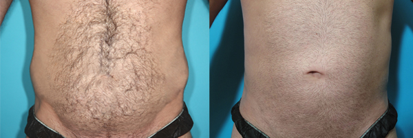 Dr. Todd Malan - Innovative Cosmetic Surgery image 5
