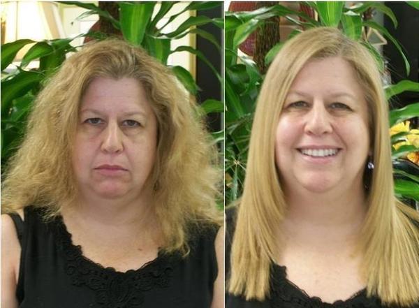 Dermaculture facial fort lauderdale fl