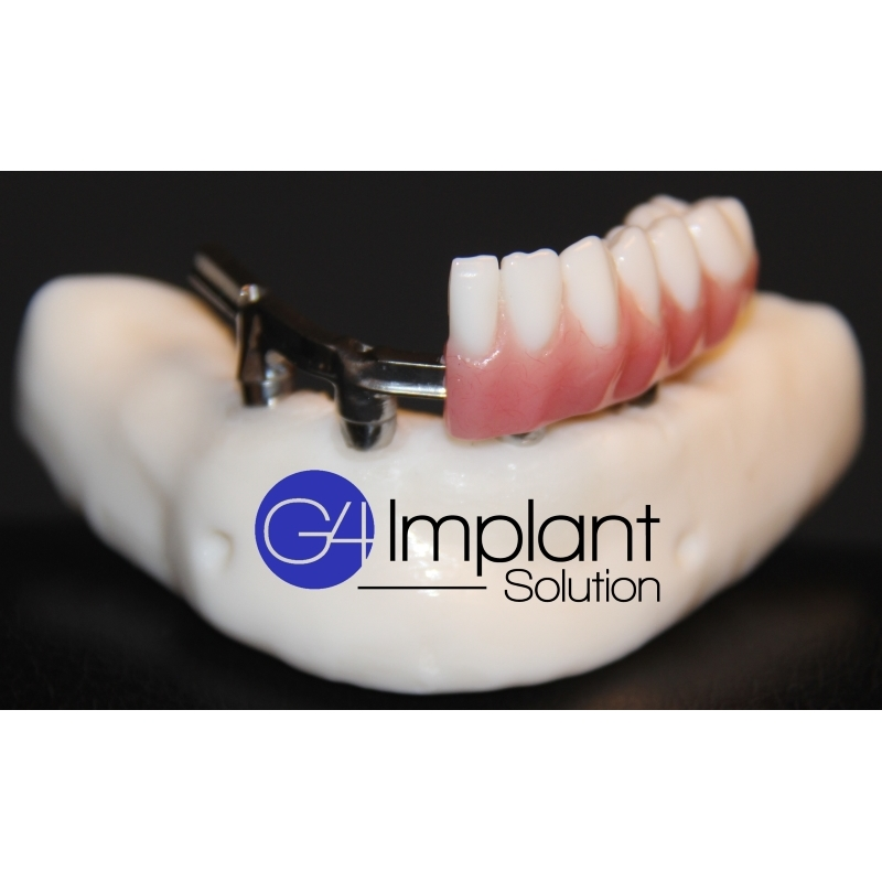 Golpa Dental Implant Center - Smile Designs by Golpa