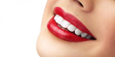 Elberta Dental