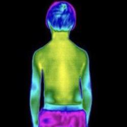 CT Thermography image 9