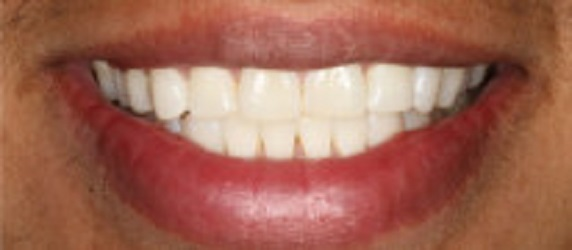Glenlake Dental Care image 5