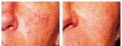 Cosmetic Laser and Beauty Spa image 5