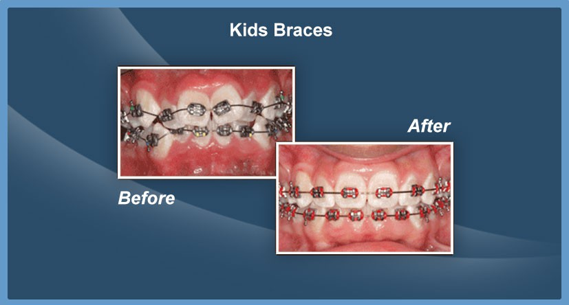 Advanced Dentistry of Spring - Stephen Glass DDS image 7