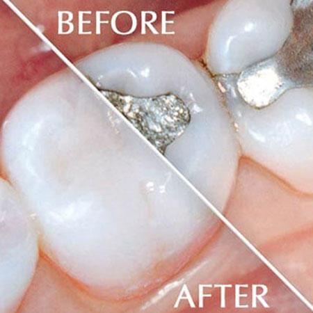 Family Dental of Westborough image 3
