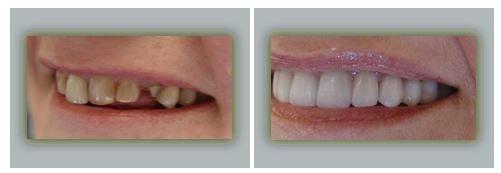 Lake Forest Dental Health Care image 1