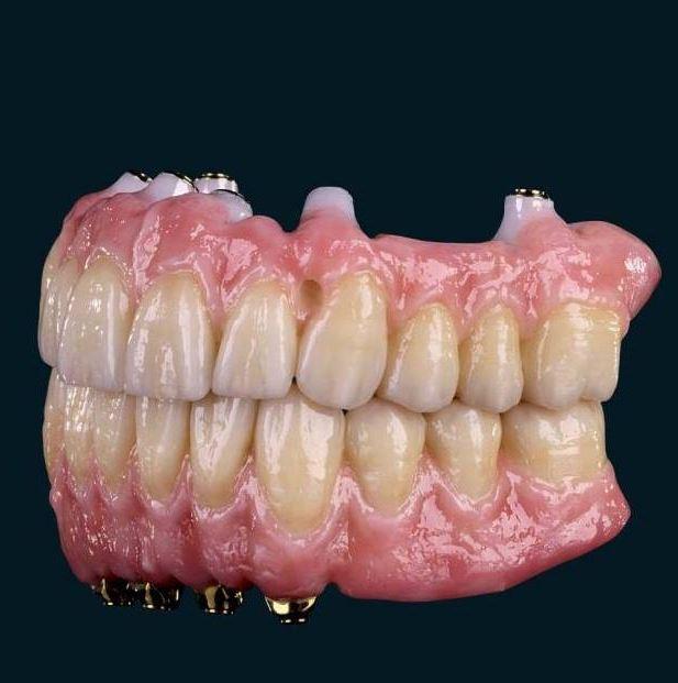 LA Implants Dental Group image 8