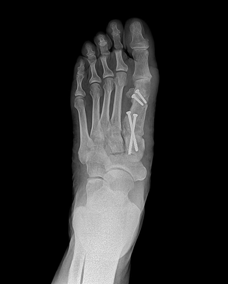 Elite Foot & Ankle Specialists image 3