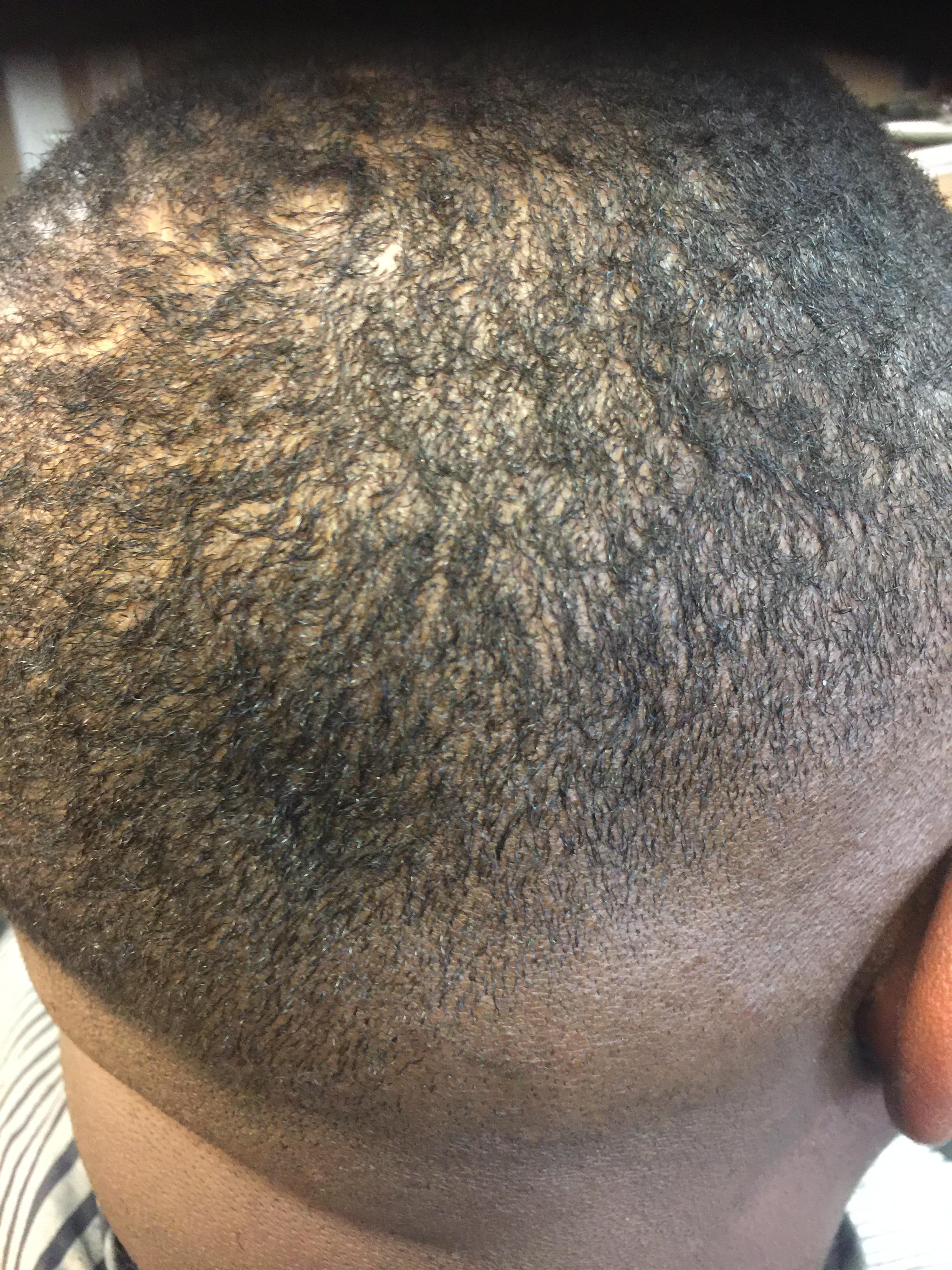 Haircuts and Razorlines image 8