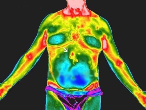CT Thermography image 12