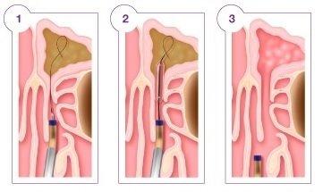 Otolaryngology Associates, PC image 3