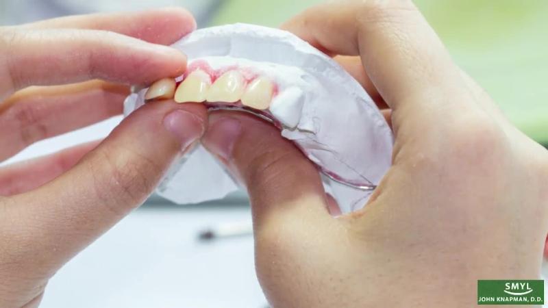 Duncan Dental (1992) Ltd in Duncan: Custom individual tooth setup.