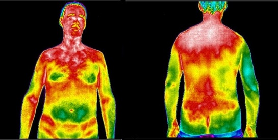 CT Thermography image 6