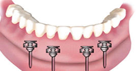 Downtown Family Dentistry image 3