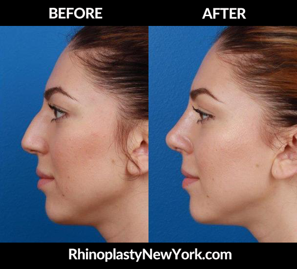 Rhinoplasty New York image 0