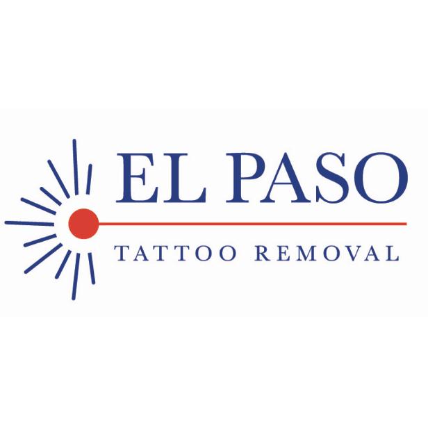 El Paso Tattoo Removal image 0
