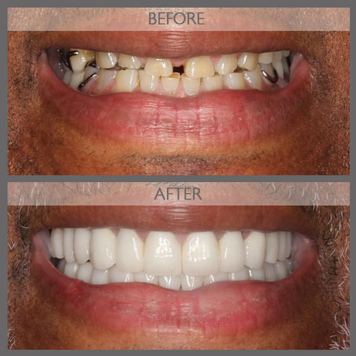 Classi Cosmetic & Implant Dentist of NYC image 4