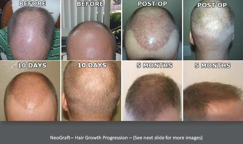 Orlando Hair Clinic image 3