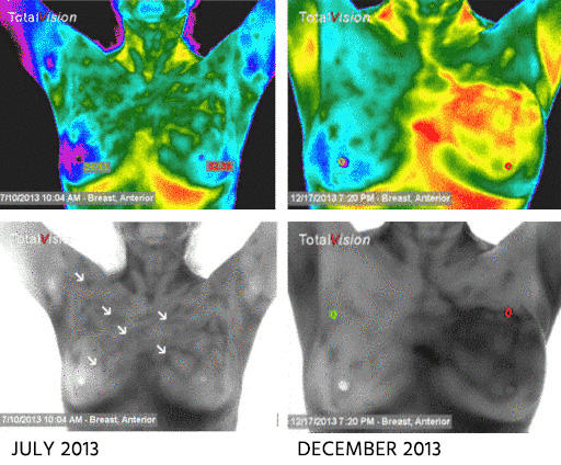 CT Thermography image 1