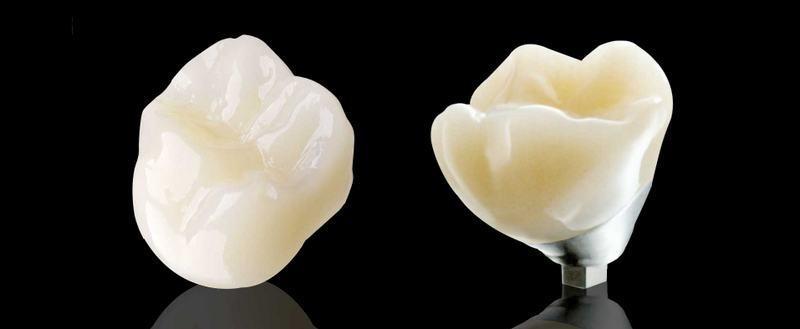 Elite Dental Design image 0