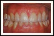Darshan P. Patel, DDS, DPh, PLLC Esthetique Dental image 4