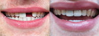 Cosmetic dental repair.