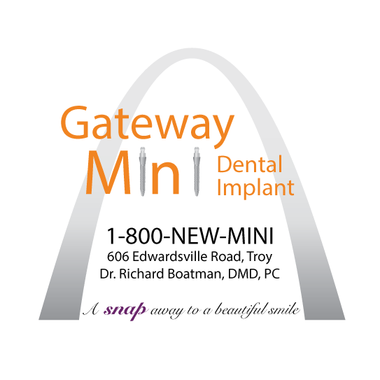 Gateway Mini Dental Implant Center