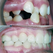 Fulks Orthodontics image 0