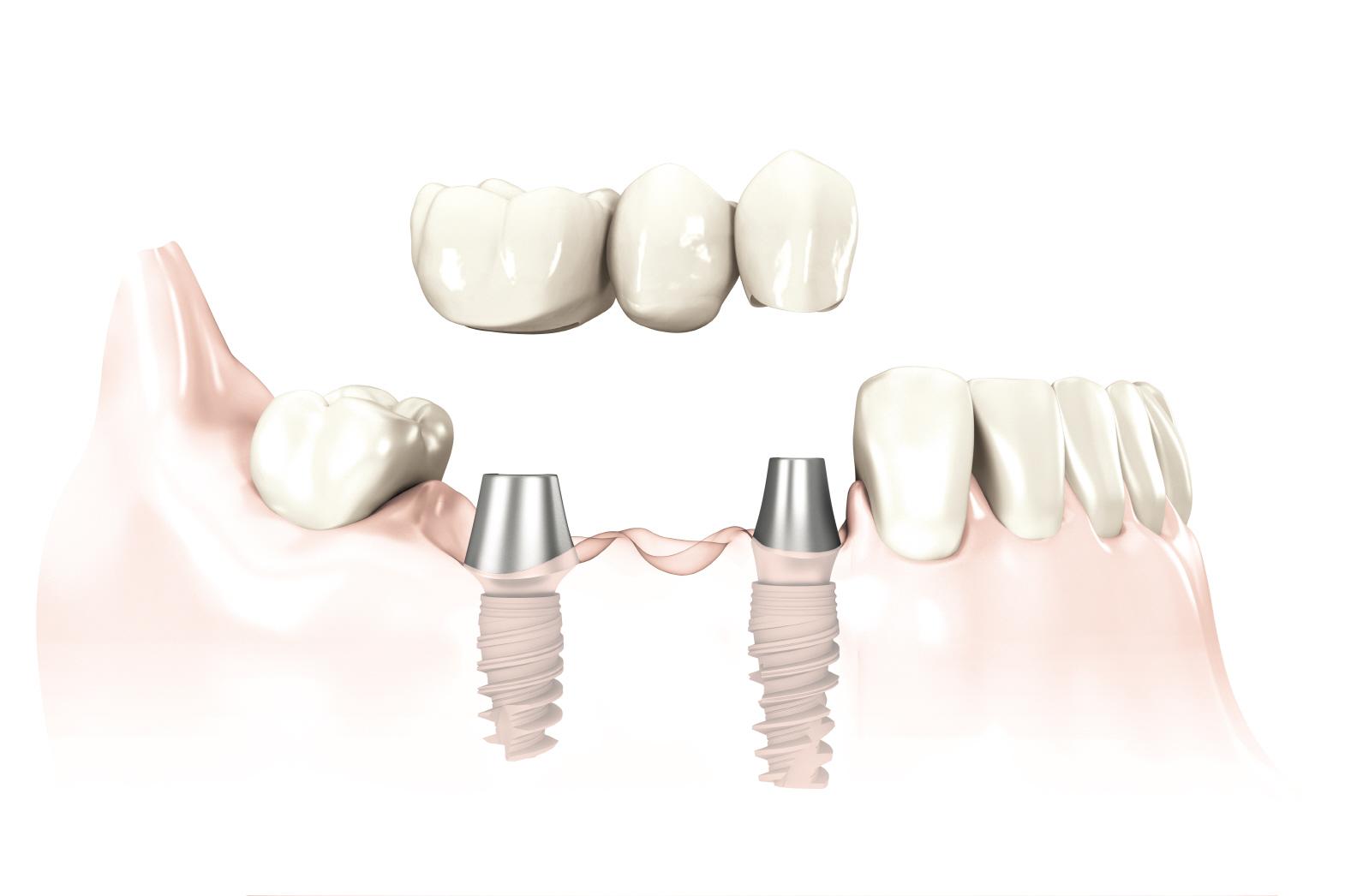 Mile High Dental & Implant Centers - Englewood