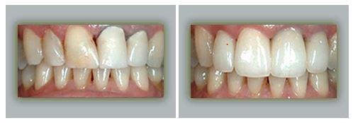 Lake Forest Dental Health Care image 9