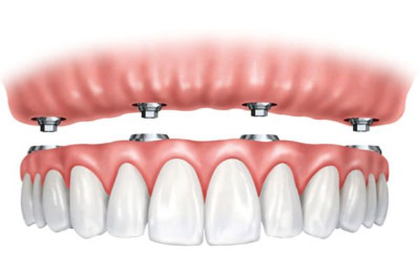 Chesterfield Dentist image 6