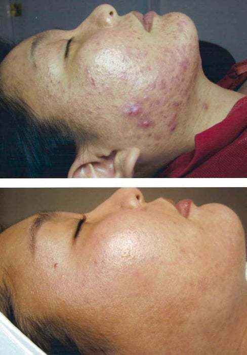 Face Reality Acne Clinic image 3