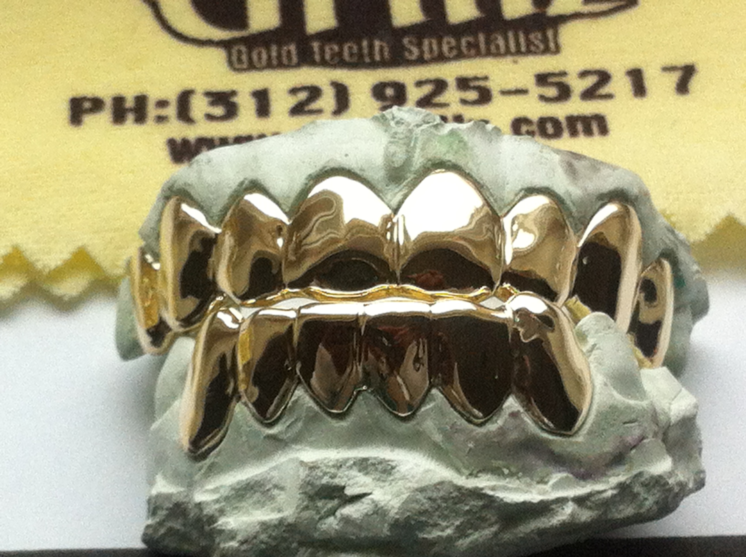 Silver Grillz Top And Bottom Bottom Silver Grillz Sets