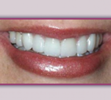 Lehigh Valley Smile Designs - Michael A. Petrillo DMD, PC image 3