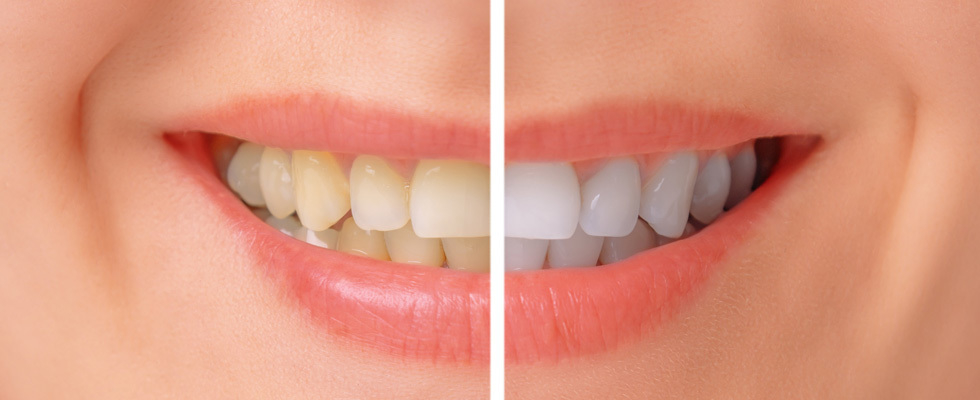 Westgate Dental Centre in Maple Ridge: Teeth whitening