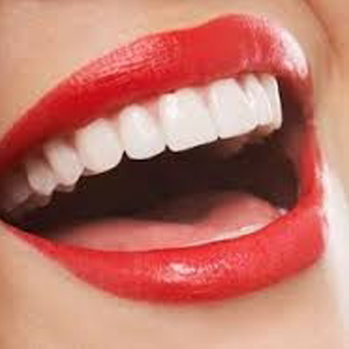 Radiant White Smiles Of Austin Cosmetic Teeth Whitening image 9