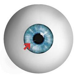 Eye Clinic Of Racine, Ltd image 8