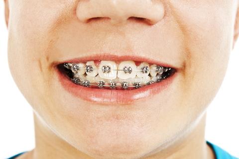 Element Dental & Orthodontics Huntsville image 8