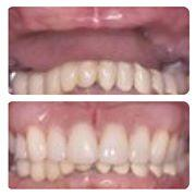 Advanced Family Dentistry of South Plainfield image 2