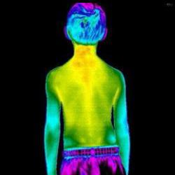 CT Thermography image 10