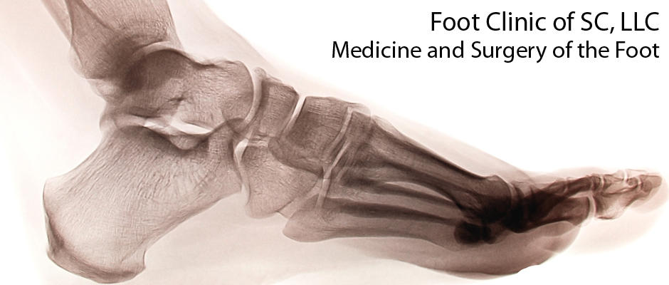 Foot Clinic of South Carolina image 0