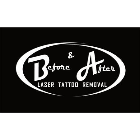 Before & After Laser Tattoo Removal