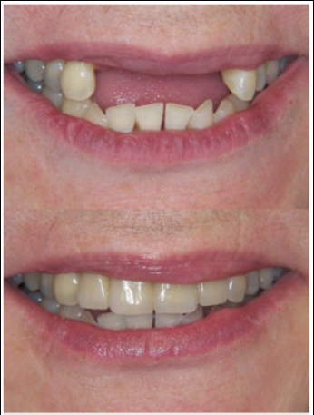 Congressional Dental Care: Ali Sarkarzadeh, DDS image 13