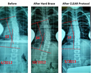Denver South Chiropractic & Rehab image 4