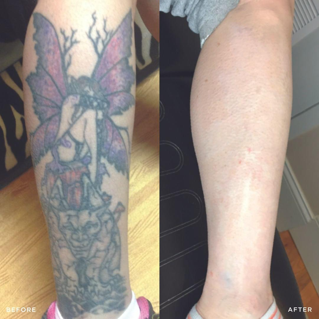 Removery Tattoo Removal & Fading