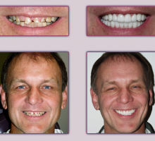 Lehigh Valley Smile Designs - Michael A. Petrillo DMD, PC image 4