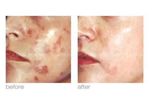Skin Smart image 2